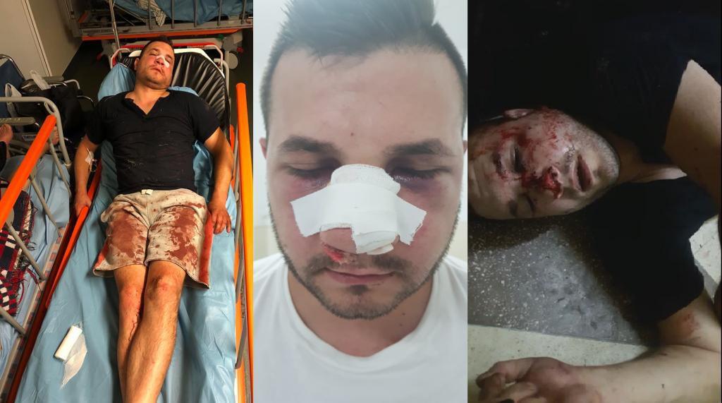 Un tânăr acuză că a fost bătut de un agent în sediul poliţiei timp de două ore şi lăsat să zacă în propriul sânge